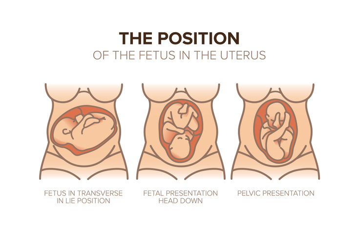 Position of the Fetus