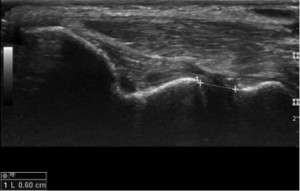 Elbow Medial Collateral Ligament Injury with joint gapping