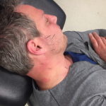 While at an acupuncture course, Dr. DiGiuseppe had some acupuncture done on himself to test out some new techniques.