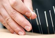 Columbia City Acupuncture