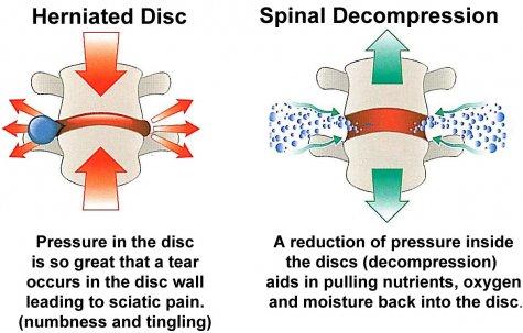 spinal_decompression description picture 3-1-17