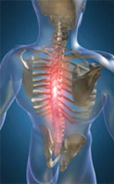 Adio Wellness orthotics back pain