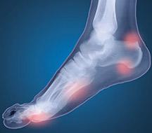 Adio Wellness orthotics foot pain