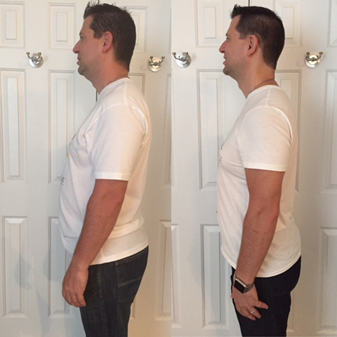 Anastasios H. Before and After ChiroThin