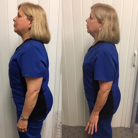 Diane H. Before and After Images