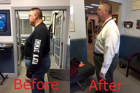 weightloss-results