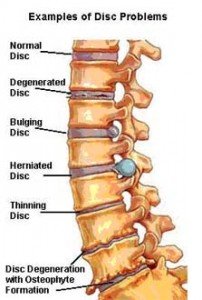 image of spinal disc