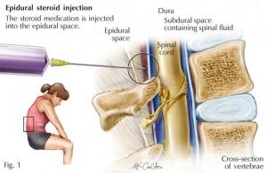 epidural1