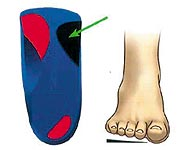 Flat feet - Forefoot lateral varus