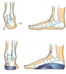 orthotics Croydon