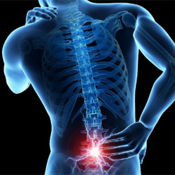 Back Pain Relief at In-Line Family Chiropractic