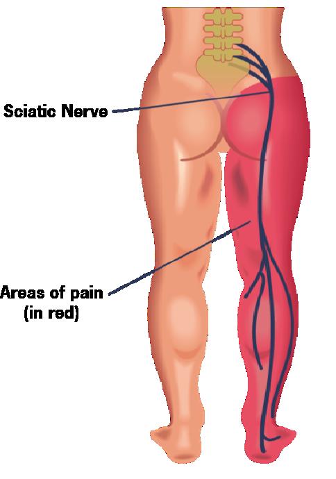 Sciatic Nerve Pain (Sciatica) Overview: Symptoms, Treatment, Outlook