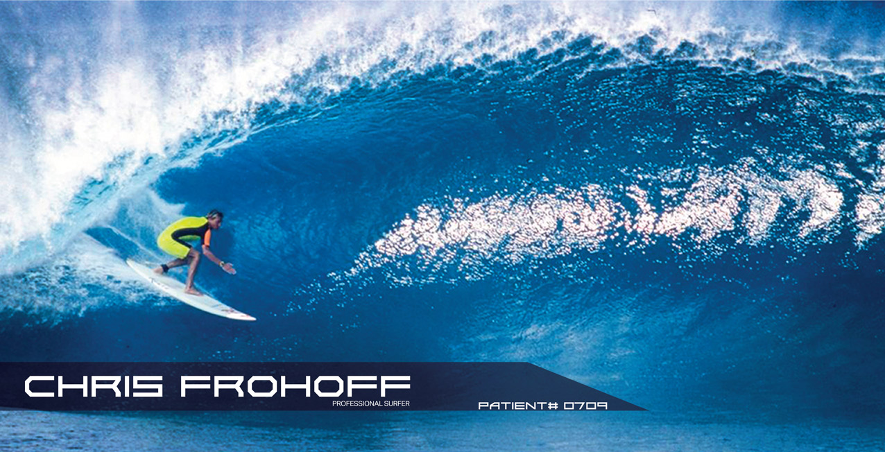 Chris Frohoff