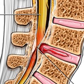 Spinal Stenosis illustration