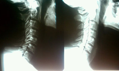 Berner Family Chiropractic