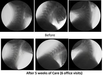 Marietta Chiropractor : Dr. Nathan Berner