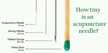 Acupuncture Needle description