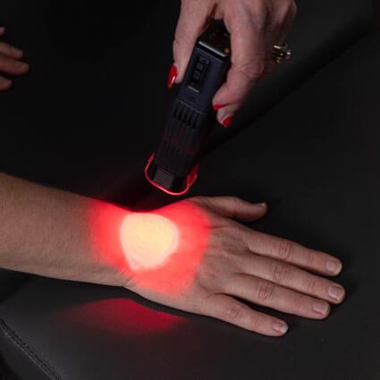 Laser on hand