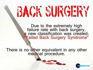 back surgery failure