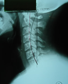 Embrun Chiropractic xray