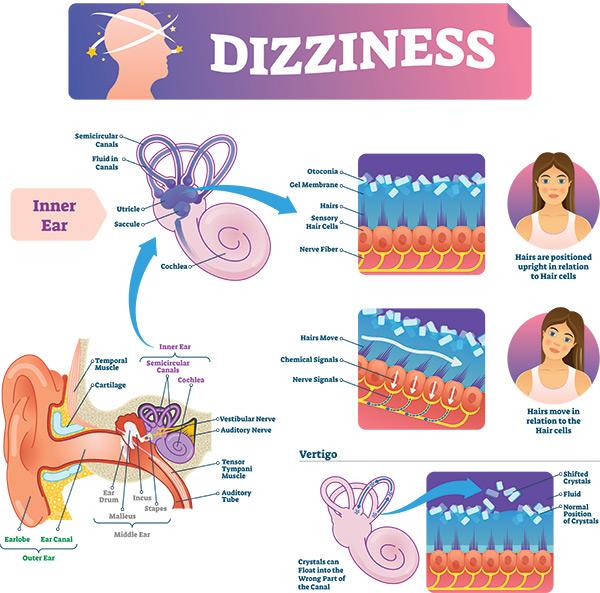 Dizziness Chart