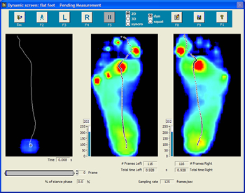 orthotic foot scan image