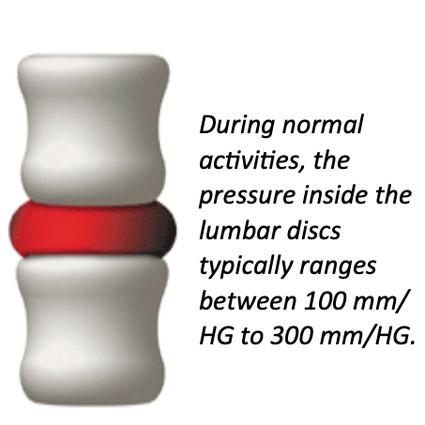 disc pressure illustration