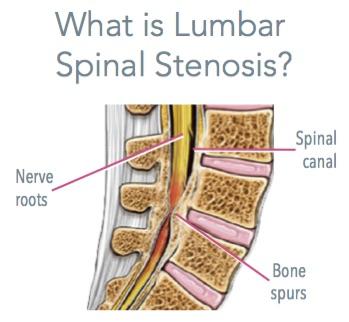 Lumbar Spinal Stenosis Depiction