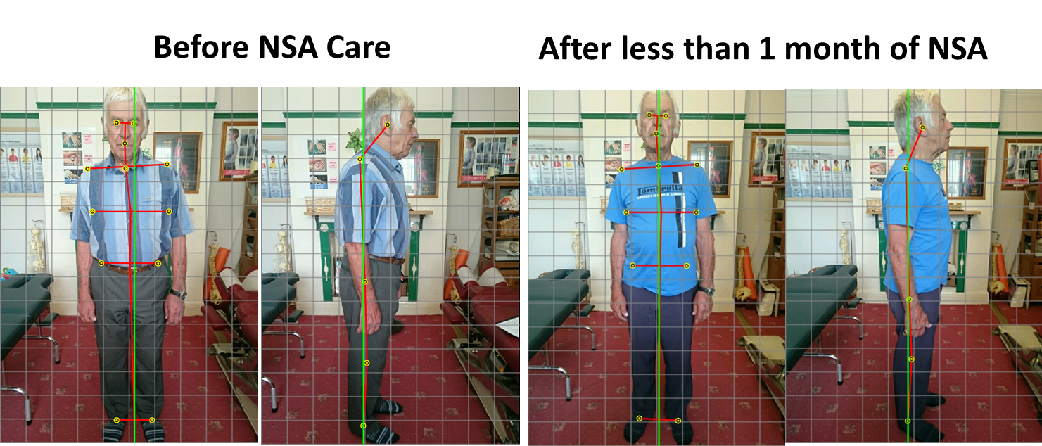Posture-Changes-52458