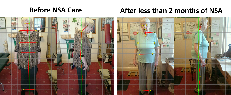 Posture-Changes-555