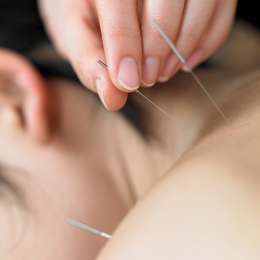 Kingston acupuncture clinic
