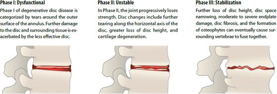 Degenerative Disc Disease Phases