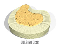 Bulging Disc