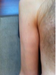 bruise3