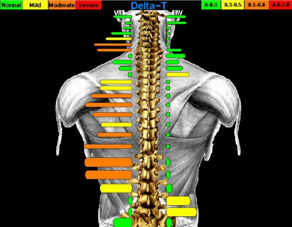 State of the art diagnostics at Brisbin Family Chiropractic
