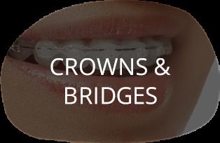 Crowns & Bridges