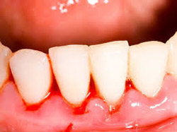 Bleeding gums can be prevented with excellent home care.
