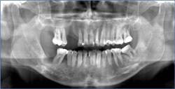 Dental X-ray Dracut