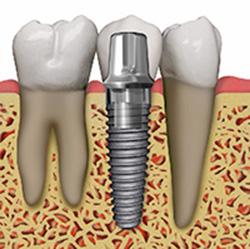 Dental Implant in Dracut