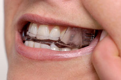 Oral Appliance Therapy Dracut