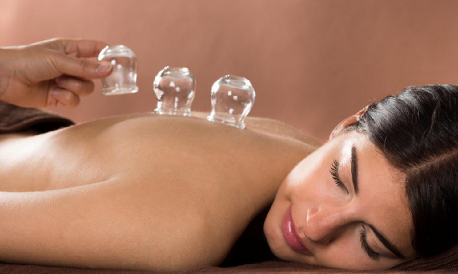 Cupping-Spa