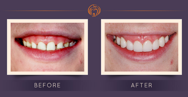 Implants with Crowns, Laminates & Crown Lengthening