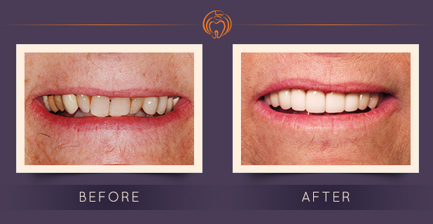 Porcelain Laminates & Crowns by Dr. Robert Griggs
