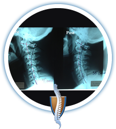 spinal rehabilitation therapy