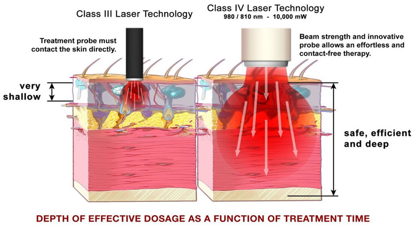 Laser Therapy Diagram