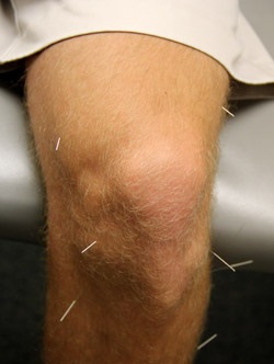 Oakville acupuncture at Devereux Chiropractic and Acupuncture, LLC