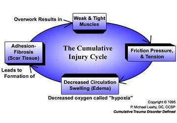 Cumulative Injury cycle image