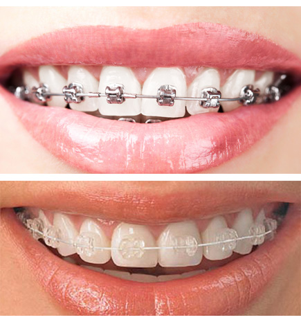Quick Straight Teeth are nearly invisible