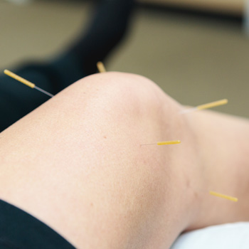 Patient's knee with acupuncture needles