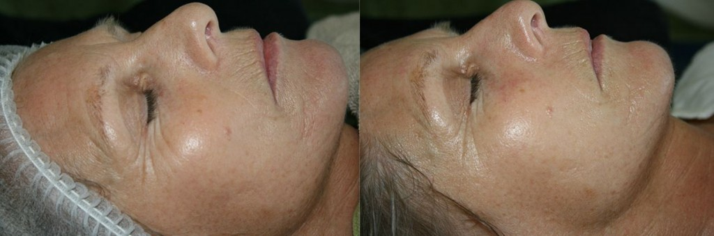 Qi-beauty-before after